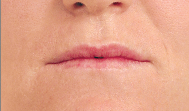 Lip Enhancement Before